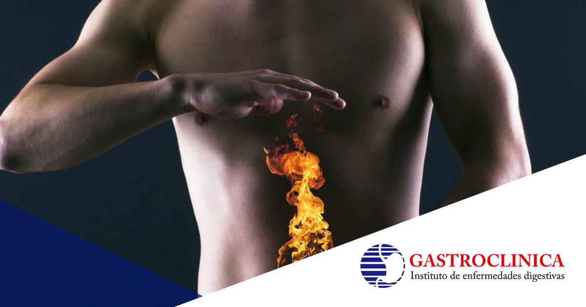 ¿Qué alimentos aumentan el riesgo de acidez estomacal?