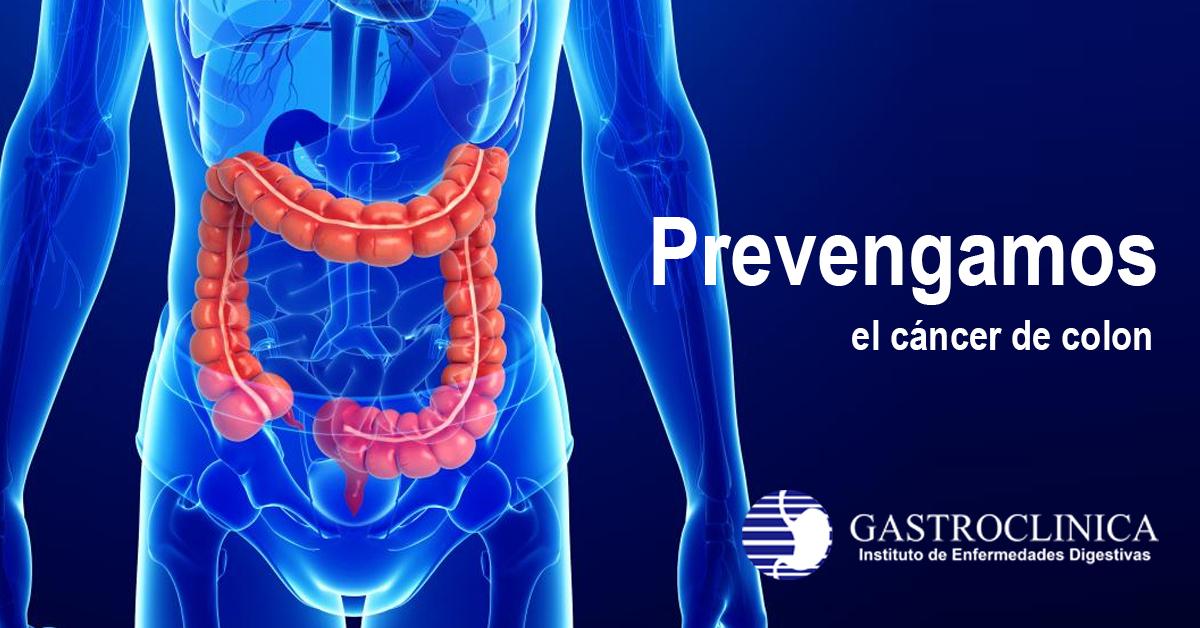 Prevengamos el cáncer de colon