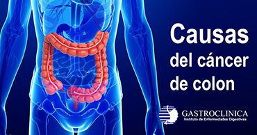 Causas del cáncer de colon