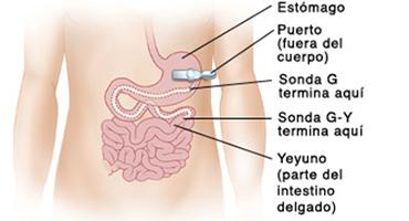 Gastrostomía Endoscópica Percutánea