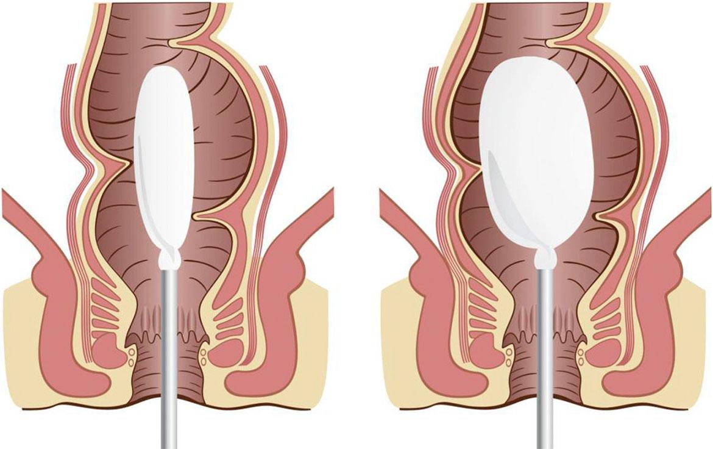 Manometría Anorrectal